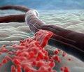Инсульт в молодом возрасте вследствие диссекции позвоночной артерии