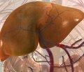 Математическая модель прогноза исхода закрытой травмы печени