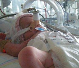 Бронхолегенева дисплазія   у недоношених новонароджених:   патогенез, клініка, лікування та профілактика (частина 1)