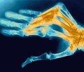 Возрастные особенности минеральной плотности костной ткани бедренной кости уженщин Донецкой области