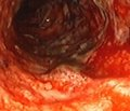 Комплексная медикаментозная терапия   при остром язвенном гастродуоденальном кровотечении