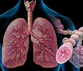 Структурно-вікова характеристика адаптаційних реакцій при переломах кісток у хворих нахронічні обструктивні захворювання легенів
