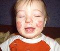 Зовнішня терапія атопічного дерматиту в дітей: сучасний погляд на проблему