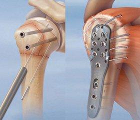 Найпоширеніші помилки при використанні інтрамедулярного блокуючого остеосинтезу