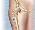 Особенности остеосинтеза переломов шейки бедренной кости в молодом возрасте