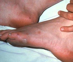 Современные проблемы лечения гнойного артрита голеностопного ...