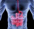 Оцінка та прогнозування ступеня тяжкості перебігу раннього післяопераційного періоду у хворих на гострі хірургічні захворювання черевної порожнини, ускладнені перитонітом