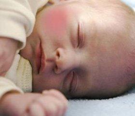 Значение антигистаминных препаратов  при лечении аллергических заболеваний у детей