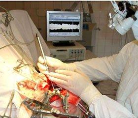 Оценка адекватности анестезии у пациентов, оперированных по поводу субтенториальных новообразований головного мозга