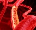 Субарахноїдальний крововилив у неврологічній практиці