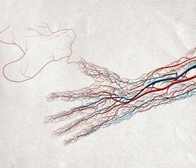 Європейські рекомендації з діагностики та лікування захворювань периферичних артерій 2011 р. Частина 4. Окремі судинні басейни