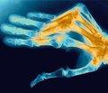 Гендерные особенности течения ревматоидного артрита