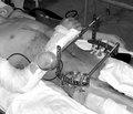 Наш досвід надання допомоги хворим із тяжкою поєднаною травмою, методи підвищення виживання постраждалих