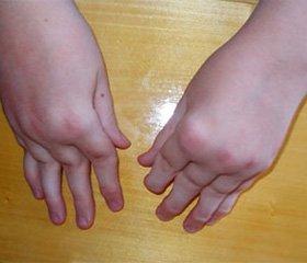 Особливості клініко-лабораторних показників   у хворих на артрит дітей, які мають підвищені титри антитіл до циклічного цитрулінованого пептиду   та модифікованого цитрулінованого віментину