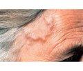 Причини і симптоми скроневого артеріїту