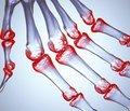 Пам'ятка для пацієнта з ревматоїдним артритом
