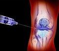 Наш опыт применения препарата хондроксид в лечении пациентов с деформирующими артрозами коленных суставов