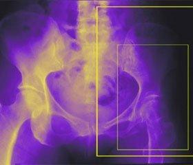Аналіз результатів оперативного лікування субкапітальних та трансцервікальних переломів шийки стегнової кістки пучком спиць з різьбою та пластиною DHS