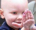 Случай острого лейкоза у ребенка раннего возраста