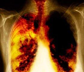 Первый опыт использования радиохирургии при лечении больных с немелкоклеточным раком легких