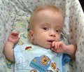 Первый опыт примененения памиреда при несовершенном остеогенезе у детей