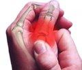 Результаты восстановительного лечения больных с посттравматическими деформациями костей и суставов пальцев кисти