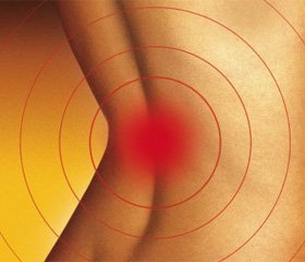 Ефективність використання Ревмоксикаму®  в комплексній терапії вертеброгенних больових синдромів