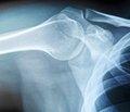 Вікові та статеві особливості мінеральної щільності кісткової тканини у дітей Донецької області