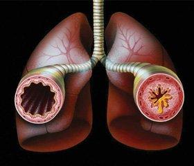 Прогнозування несприятливого перебігу перших нападів бронхіальної астми в дітей раннього віку