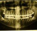 Клиническая классификация переломов мыщелкового отростка нижней челюсти