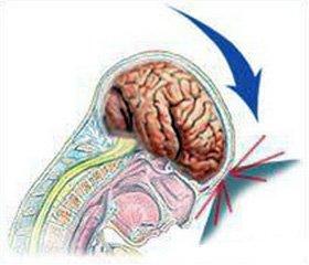 Особенности вегетативных нарушений у пациентов с последствиями легкой черепно-мозговой травмы в отдаленном периоде