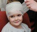 Особенности ближайших исходов лечения детей с ушибом головного мозга легкой степени