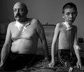 Последствия чернобыльской катастрофы для психического здоровья