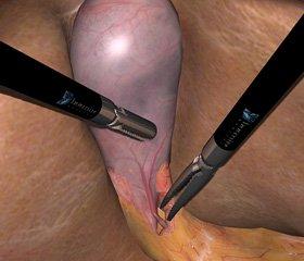 Мини-инвазивная   холецистэктомия с использованием биологической сварки тканей у ранее оперированных больных