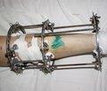 Комбинированный метод лечения переломов костей предплечья