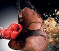 Тактика лікування хворих на цироз печінки з кровотечею   з варикозно-розширених вен стравоходу, шлунка в поєднанні   з іншими ускладненнями портальної гіпертензії   з застосуванням лапароскопічної техніки