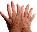Ревматоидный артрит: остеопороз иэндопротезирование