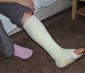 Профилактика и лечение дисрегенерации придиафизарных переломах верхних конечностей