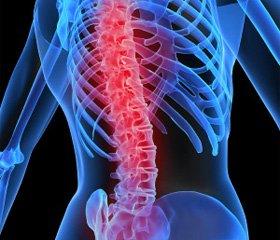 Миофасциальная дисфункция и нарушение биомеханики позвоночника в генезе головной боли и головокружения