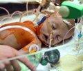 Изучение патогенетических механизмов формирования иммунологического ответа  у недоношенных детей с бронхолегочной дисплазией