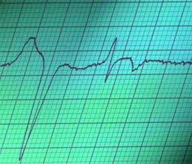 Петлевые диуретики в лечении хронической сердечной недостаточности: 2012 г.