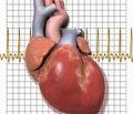 Проблема приверженностив профилактике и лечении артериальной гипертензии