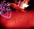 Довготривалий прогноз у жінок, які перенесли інфаркт міокарда