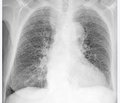 Occupational lung diseases: statistical indicators, risk assessment and biological markers