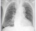 Профессиональные заболевания легких: статистические показатели, оценка рисков ибиологические маркеры