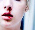 Травма, кровопотеря, гемостаз