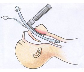 Using supraglottic airway devices for awake blind tracheal intubation of obese patients