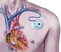 Клиническое наблюдение «взбесившегося» электрокардиостимулятора