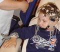 Характеристика и динамика электроэнцефалографических показателей у детей с симптоматической фокальной эпилепсией