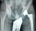 Використання методів фізіотерапії у хворих ортопедо-травматологічного профілю після металоостеосинтезу та ендопротезування